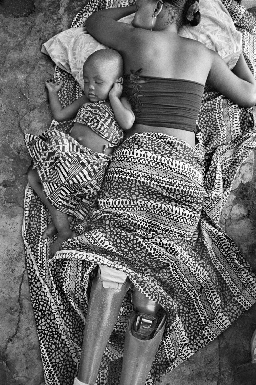 Sof°a Elface Fumo, v°ctima de una mina antipersona, duerme junto a su hija Alia