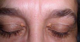 giconda-efectos-xantelasma