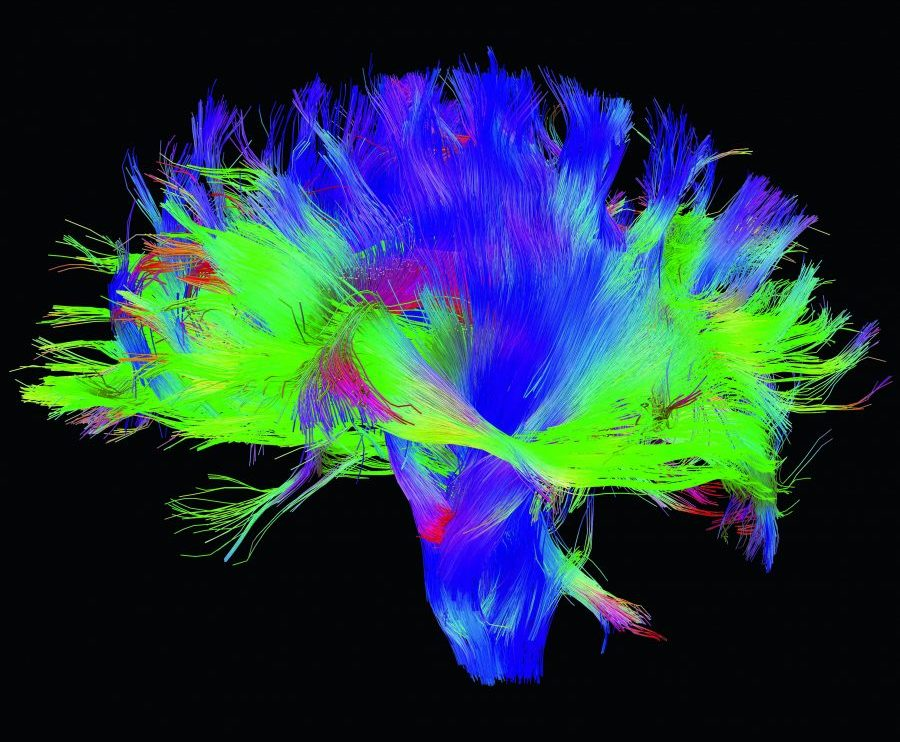 111-brain