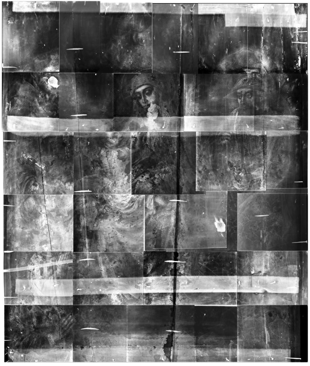 radiografa